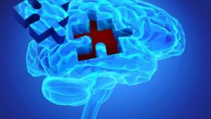 Lutein and Cognition